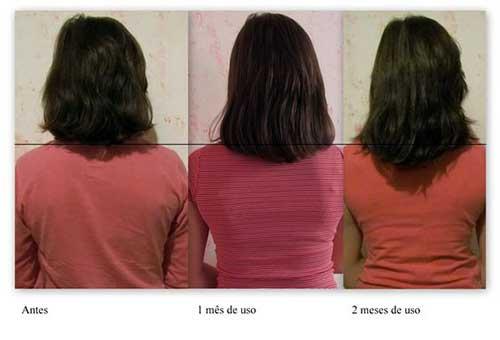 cabelo curto cresce com monovin