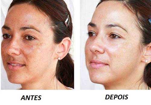 como usar monovin a para clarear a pele
