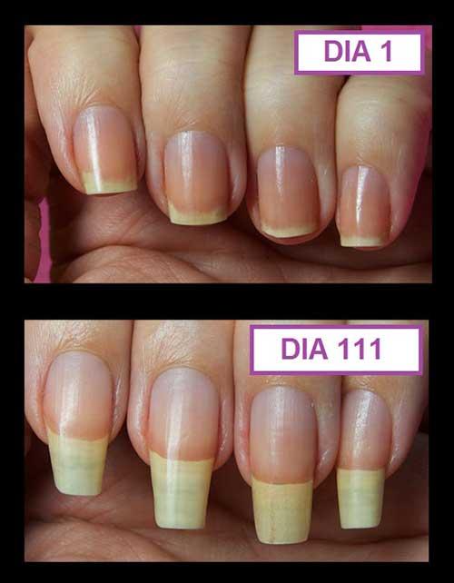 antes e depois de usar por quase 4 meses nas unhas