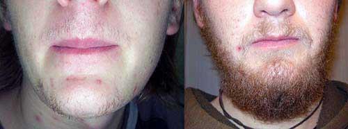 monovin a faz mesmo a barba crescer