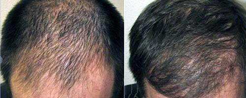 resultados na calvicie masculina