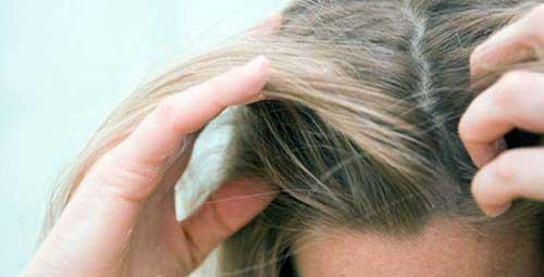couro cabeludo bem cuidado e fundamental