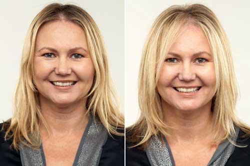 foto antes e depois de corte feminino pra rosto redondo