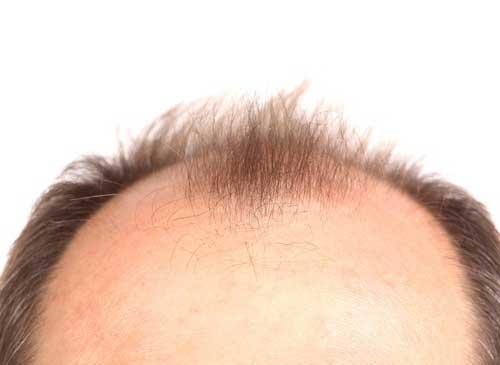 calvicie causa dor na cabeça