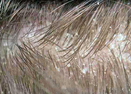 couro cabeludo com caspa oleoso