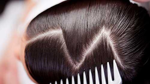 Resultado de imagem para ressecamento do couro cabeludo