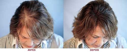 resultado do tratamento da calvicie feminina