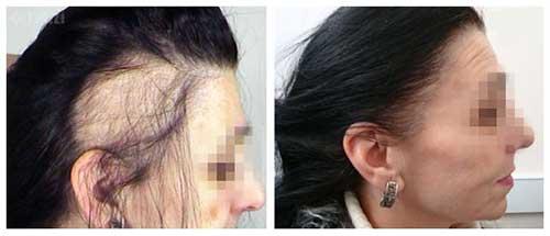 calvicie feminina e genetica e tem cura