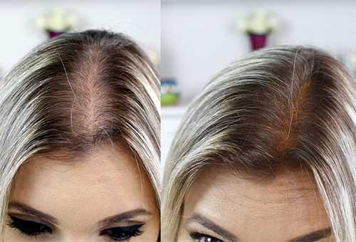 Resultado de imagem para alopecia feminina