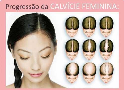 calvicie feminina tem cura e tratamento que funciona