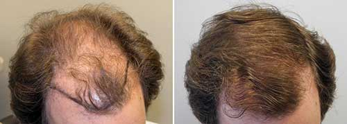 minoxidil e rogaine funcionam no cabelo masculino