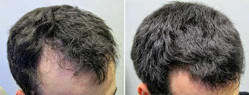 Minoxidil Guia F 193 Cil Ensinando A Usar Na Barba E No Cabelo