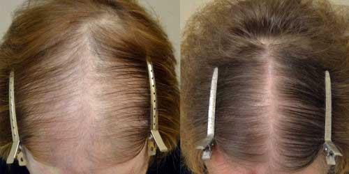 resultados de rogaine no cabelo feminino