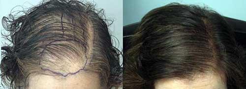tratamento com minoxidil por 6 meses funciona