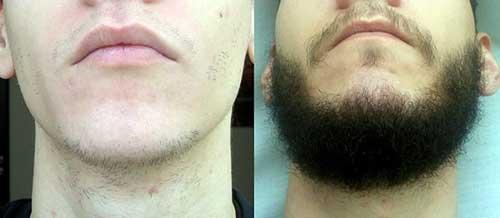 resultados de minoxidil liquido na barba