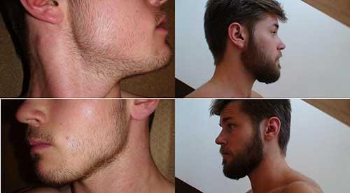 resultado de usar 1 ml duas vezes por dia de kirkland na barba