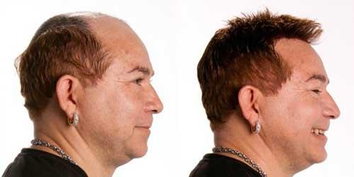 aplique para resolver a queda de cabelo masculina