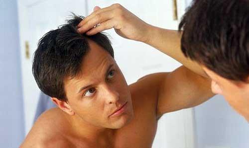causas, tratamentos e dicas sobre queda de cabelo no homem