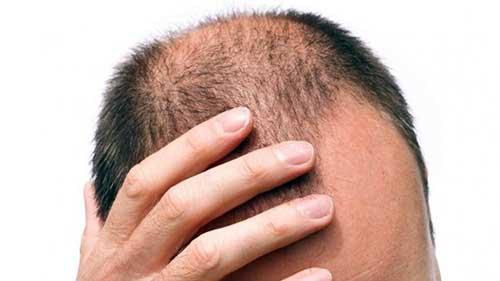 queda de cabelo afeta mais da metade dos homens