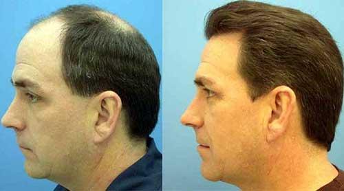 resultados do transplante capilar