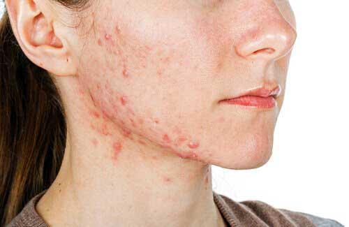 biotina em excesso causa acne