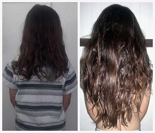 antes e depois de usar pill food por 180 dias
