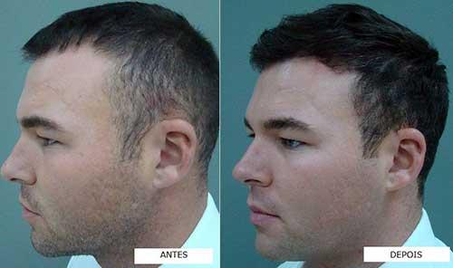 oleo de canola faz o cabelo masculino crescer