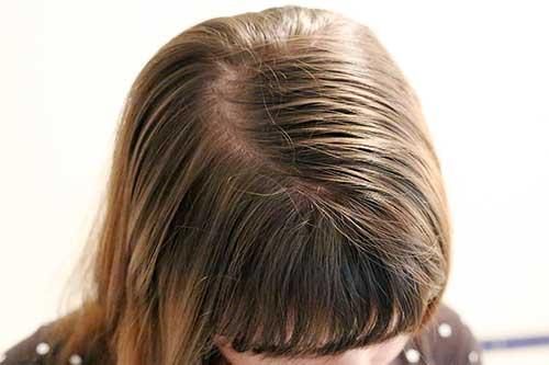 escova progressiva de chocolate nao e boa pra quem tem cabelo oleoso