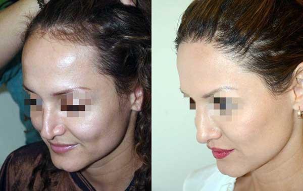 antes e depois de fazer transplante capilar na testa