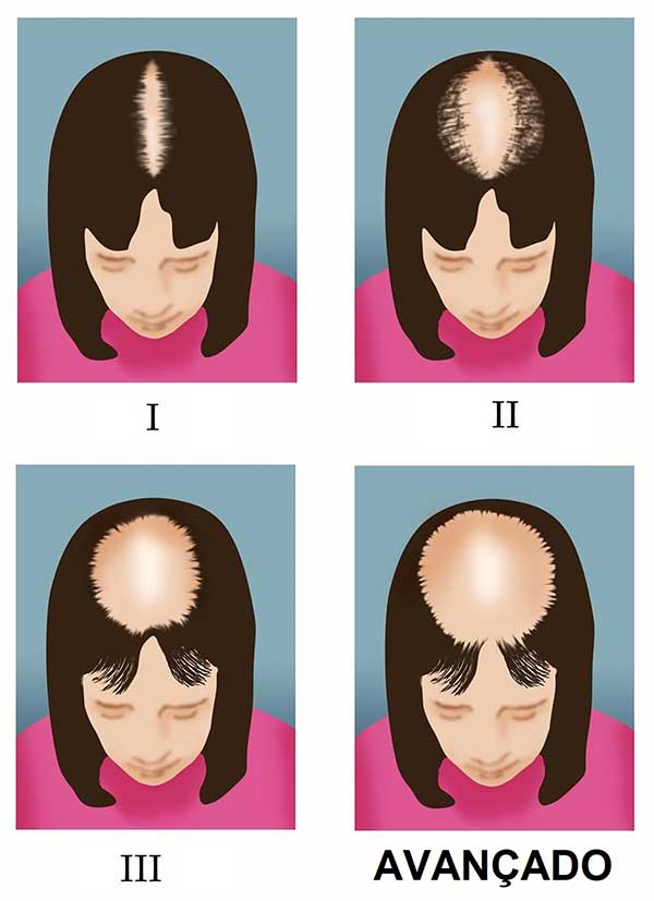 estágios da calvície na mulher - transplante resolve