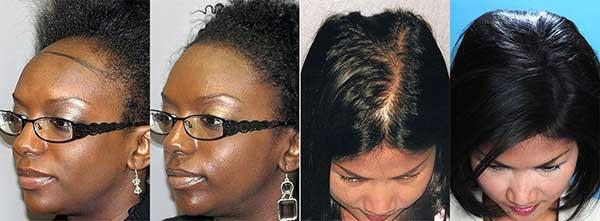 resultados do transplante de cabelo feminino podem ser muito bons!